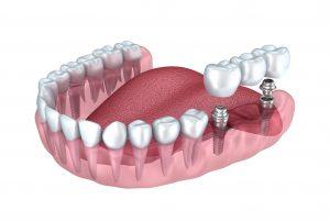 digital image of dental implant
