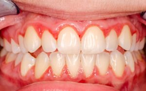 gums with gingivitis